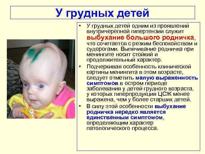 Повышенное внутричерепное давление у ребенка   | материнство - беременность, роды, питание, воспитание