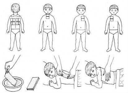 Горчичники при кашле - советы, как правильно ставить взрослым и детям