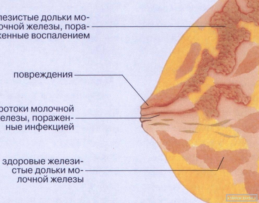 Противопоказания к узи молочной железы