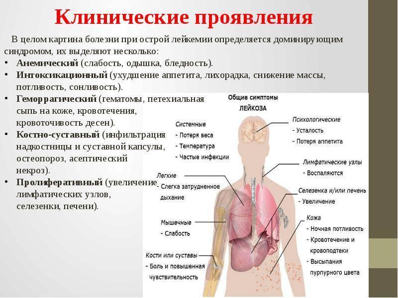 Острый лейкоз крови: симптомы, диагностика, лечение, стадии и профилактика острой лейкемии