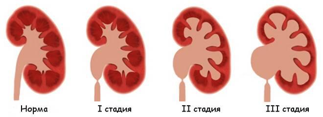 Аномалии мочевого пузыря, удвоение почек, добавочная почка