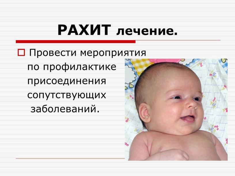 Рахит у грудничков: симптомы и лечение у детей до 1 года и старше, профилактика