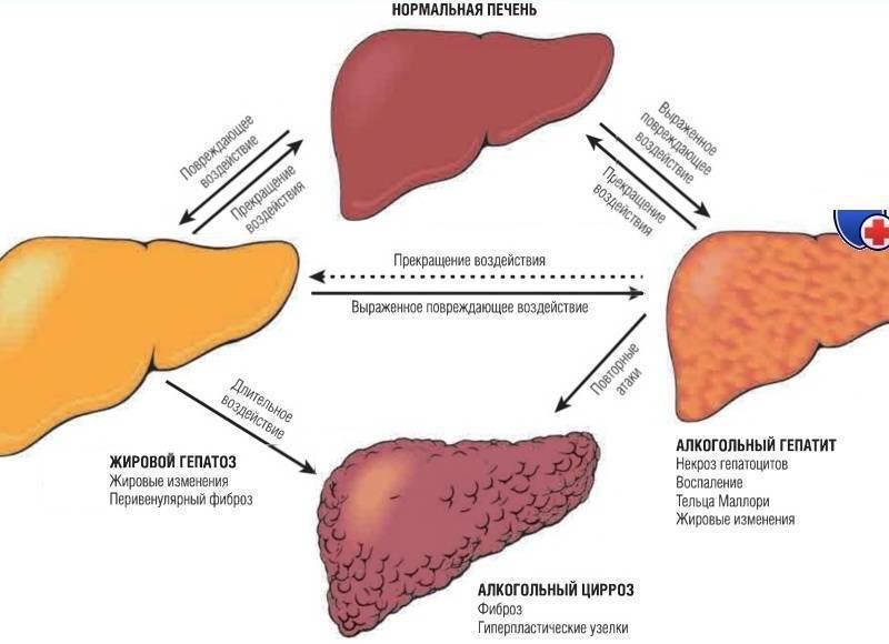 Причины и симптомы фиброза печени. лечение фиброза печени 1-4 степеней