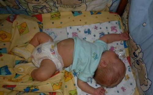Мой ребенок плохо держит (не держит) голову в вертикальном положении