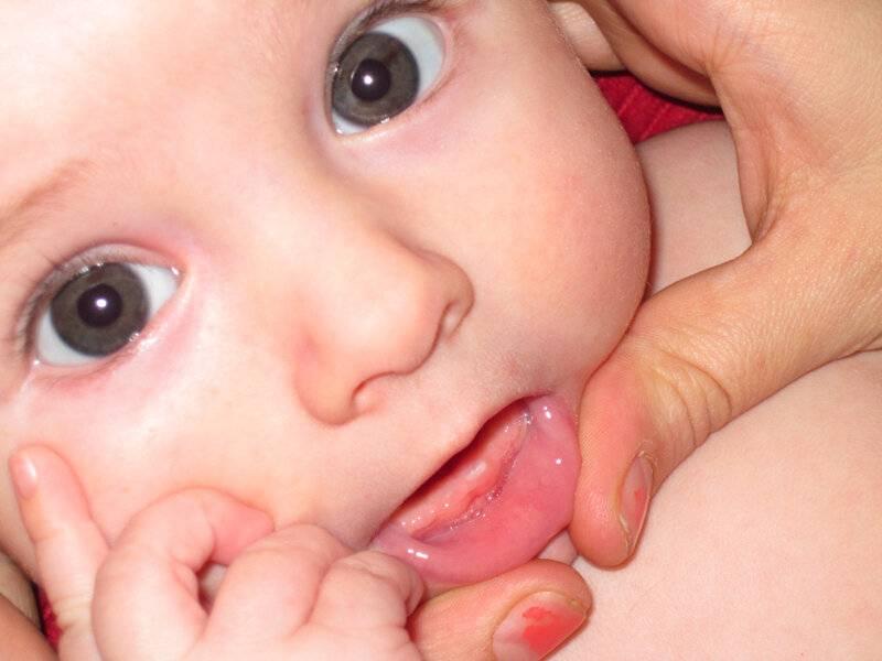 Режутся зубки и клыки: как понять и что делать