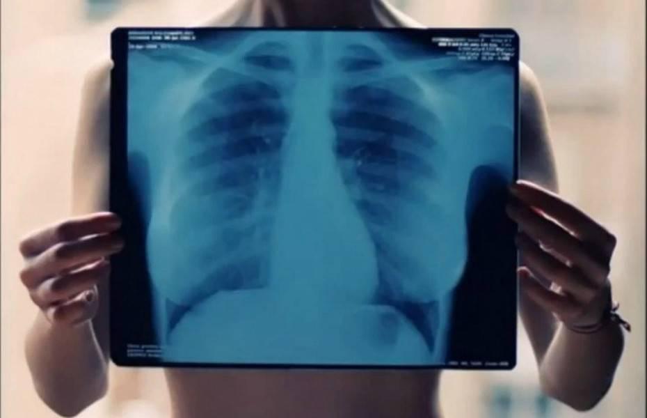 Для чего нужна флюорография мужа при беременности? полезная информация для беременных.