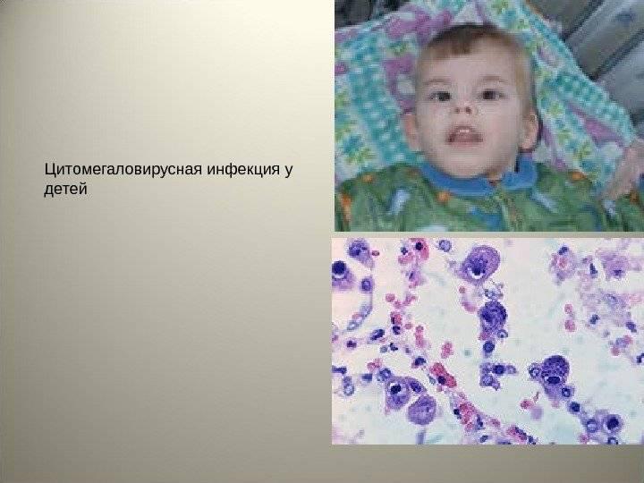 Антитела к вирусу герпеса 6 типа lgg, hhv 6 т. igg п/кол.