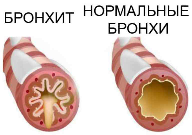 Ротавирусная инфекция (кишечный грипп): симптомы и лечение – напоправку