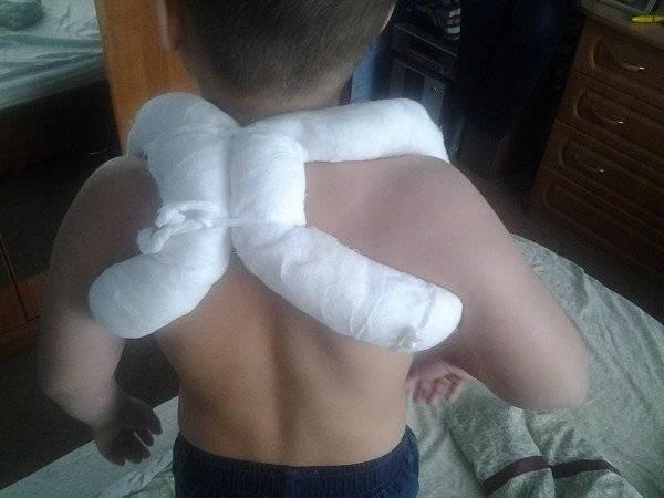 Перелом ключицы у детей