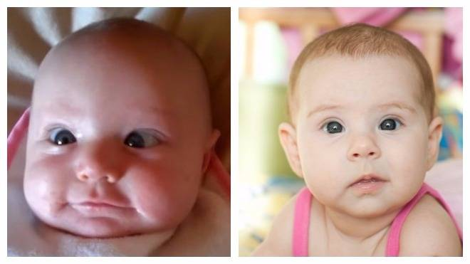 Причины закатывания глаз у новорожденных
