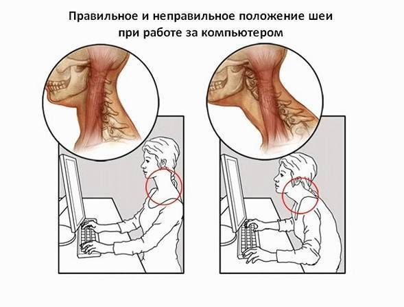 Боли в шее сзади у основания черепа