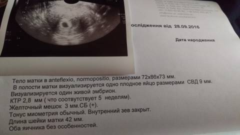 4 неделя беременности