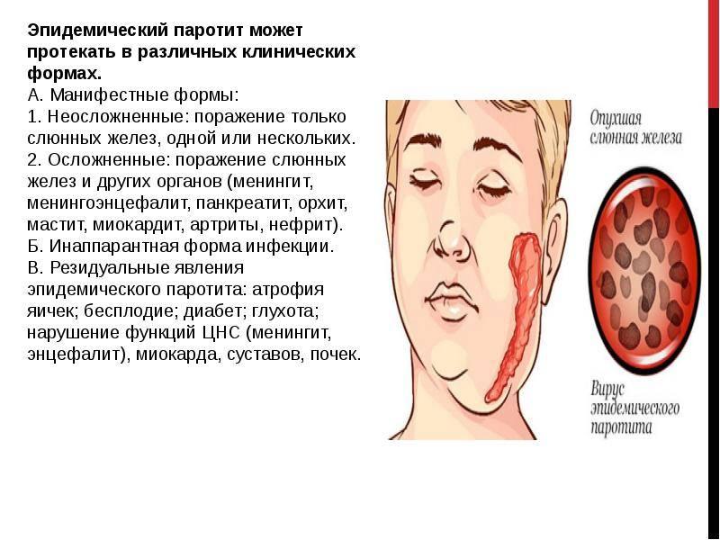 Эпидемический паротит   eurolab   инфекционные болезни