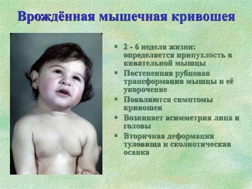 Установочная кривошея у новорожденных