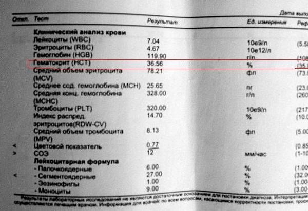 Общий анализ крови с лейкоформулой (5-diff), микроскопия, соэ + фотофискация препарата при выявлении патологии