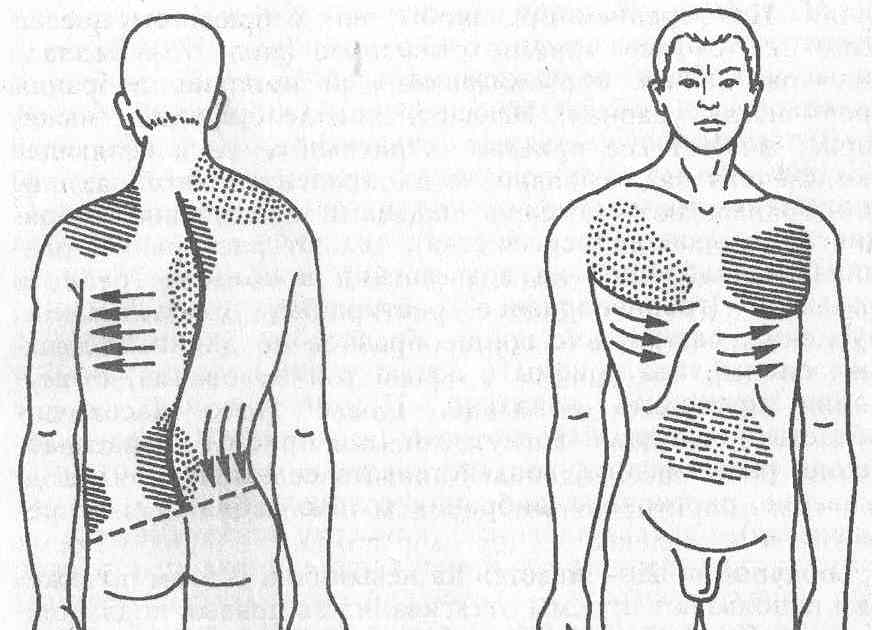 Сколиоз 1 и 2 степени. реабилитация, лечение, симптомы, причины, диагностика | центр дикуля