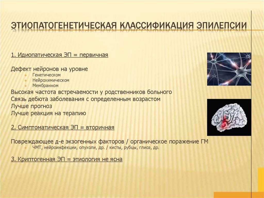 Совсем не страшная эпилепсия - причины, диагностика и лечение