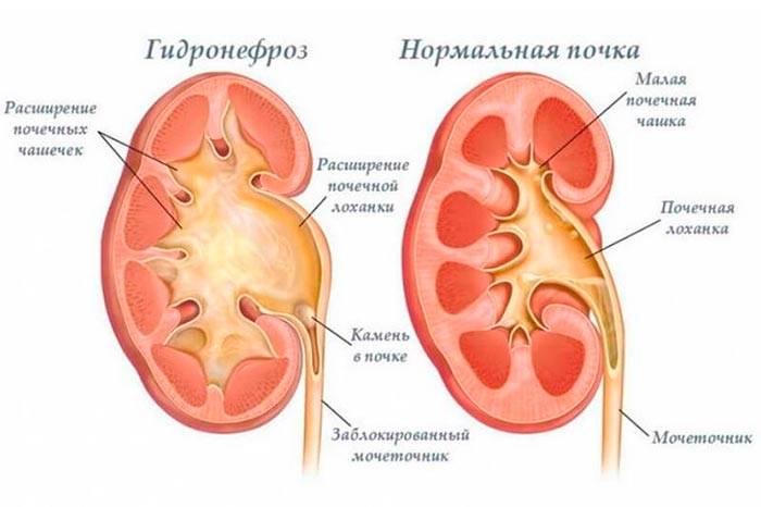 Гидронефроз: особенности заболевания почек