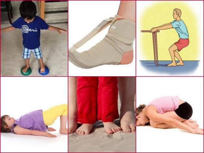 Почему ребенок ходит на носочках. ребенок ходит на цыпочках