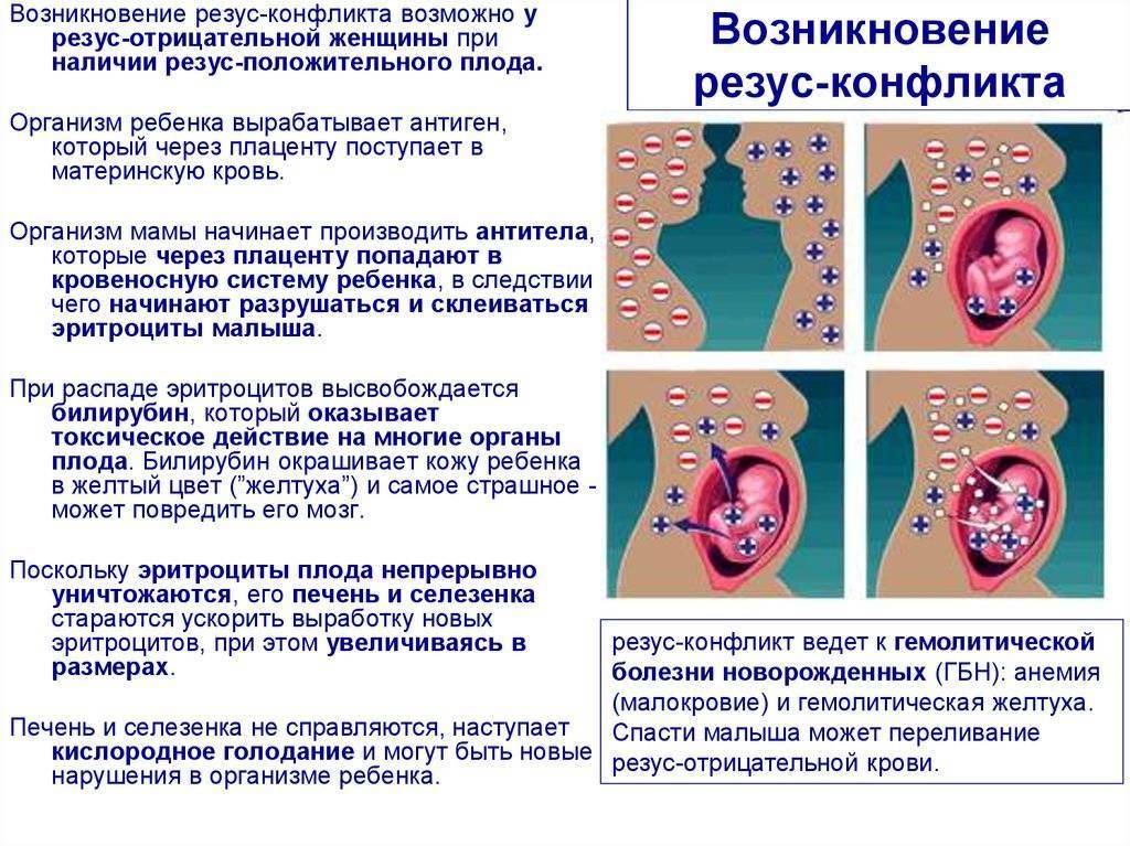 Гемолитическая болезнь новорожденных по группе крови: последствия, лечение и профилактика