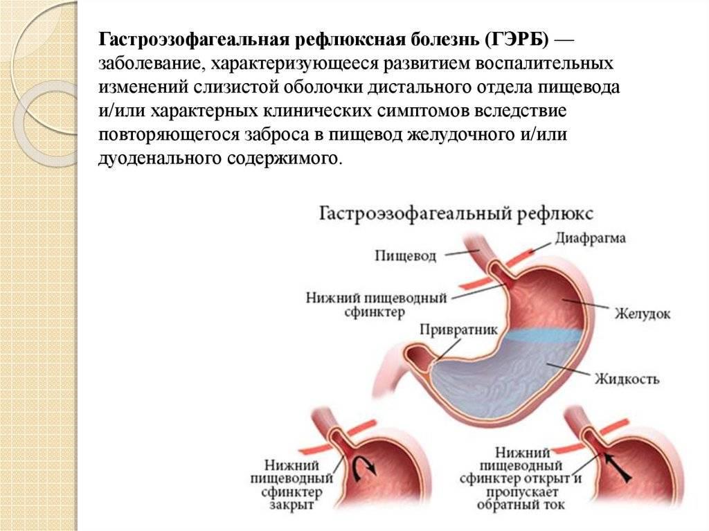 Лечебное питание при гастроэзофагеальной рефлюксной болезни.