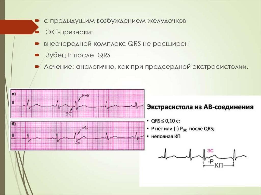 Когда показать ребенка кардиологу