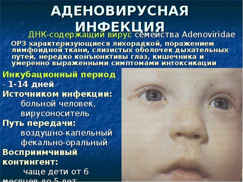 Какие бывают конъюнктивиты у детей