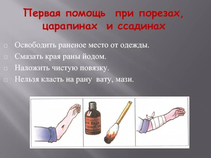 Правила обработки ран: классификация, наложение повязки   food and health