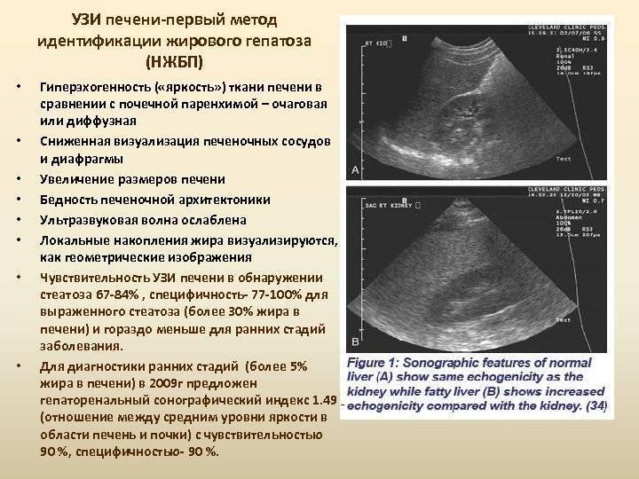 Гепатомегалия при ультразвуковом исследовании – узи в красноярске
