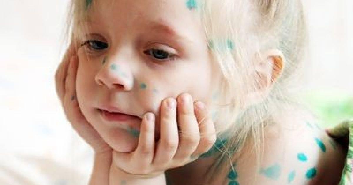 Лечение детского конъюнктивита в домашних условиях - энциклопедия ochkov.net