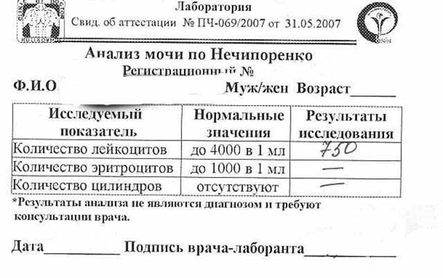 Анализ мочи — диагностика с максимальной результативностью * клиника диана в санкт-петербурге