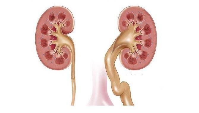 Аномалии мочевого пузыря, удвоение почек, добавочная почка - официальный сайт доктора файзулина
