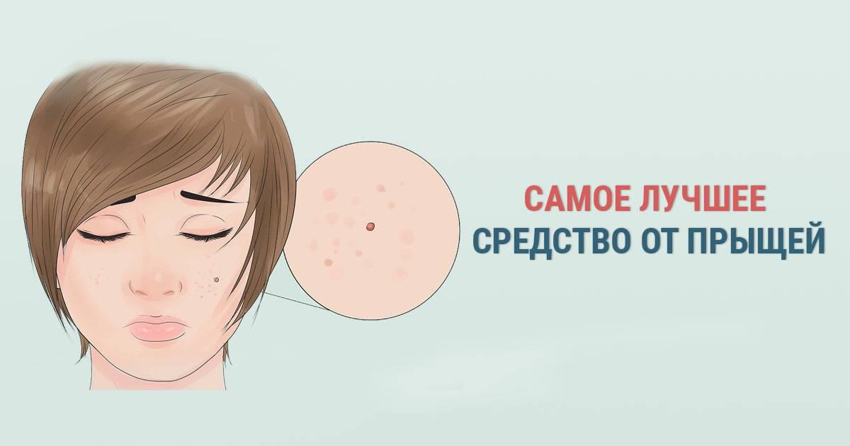 Как избавиться от прыщей на лице: обзор косметических средств и косметологических процедур от акне
