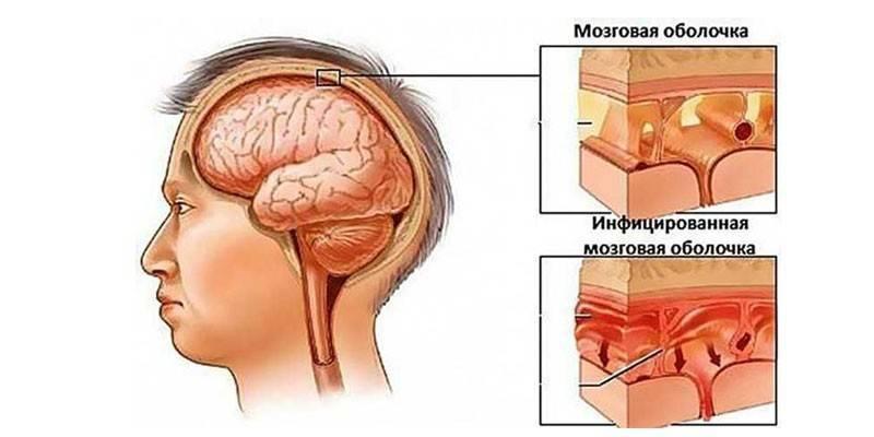 """Киста головного мозга у новорожденного: лечение и последствия   гбу """"республиканский онкологический диспансер"""" г.грозный"""