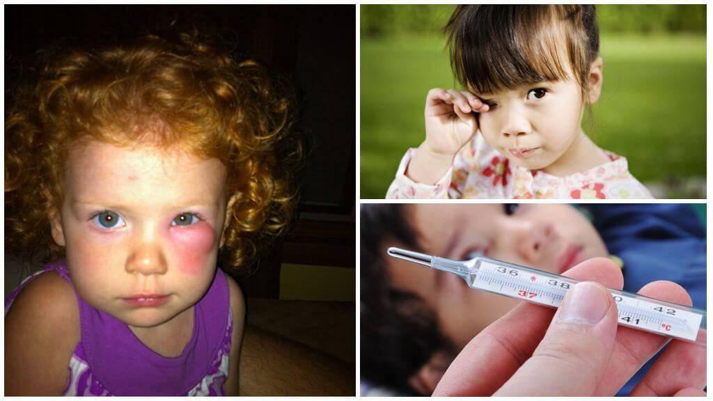 /глаз опух от укуса комара у ребенка - что делать?