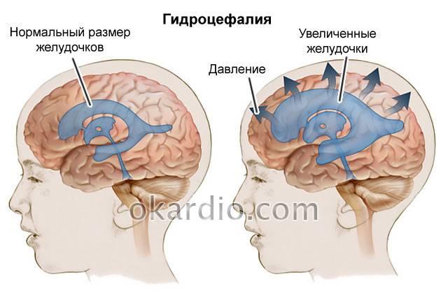 Лечение — дисциркуляторная энцефалопатия  — цереброваскулярные заболевания — справочник нозологий— перечень нозологий