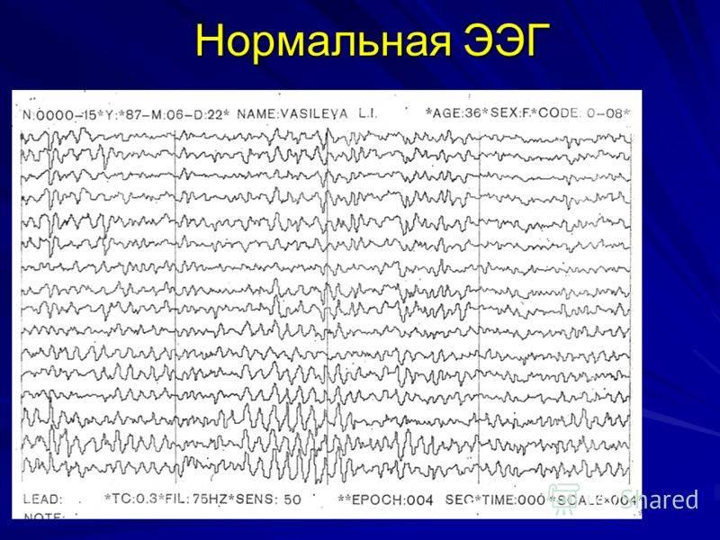 Электроэнцефалография (ээг): как проводится, показания, подготовка   food and health