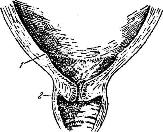 Внутренний зев матки сомкнут при беременности: что это означает, что делать?