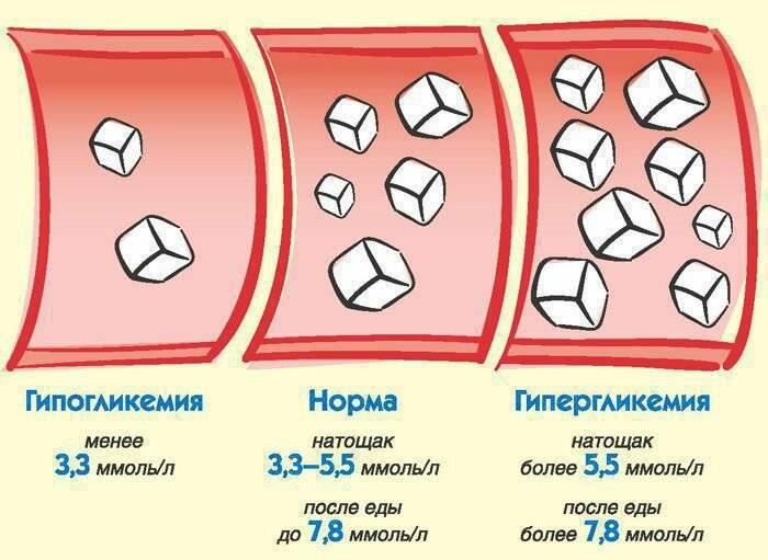 Диабет гестационный