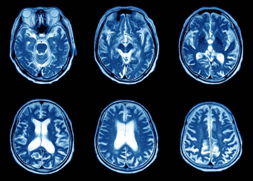 Расшифровка мрт головного мозга  как выглядит мрт снимок головы в норме