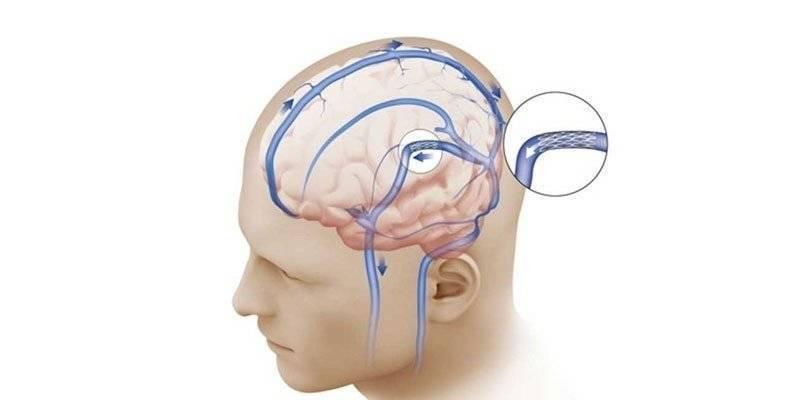 Внутричерепная гипертензия у детей, способы ее лечения и последствия