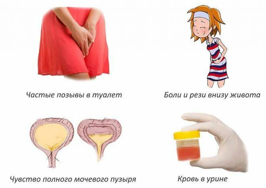 Боль при мочеиспускании у детей. почему больно писать девочке и мальчику 2, 3, 4, 5, 6 лет?
