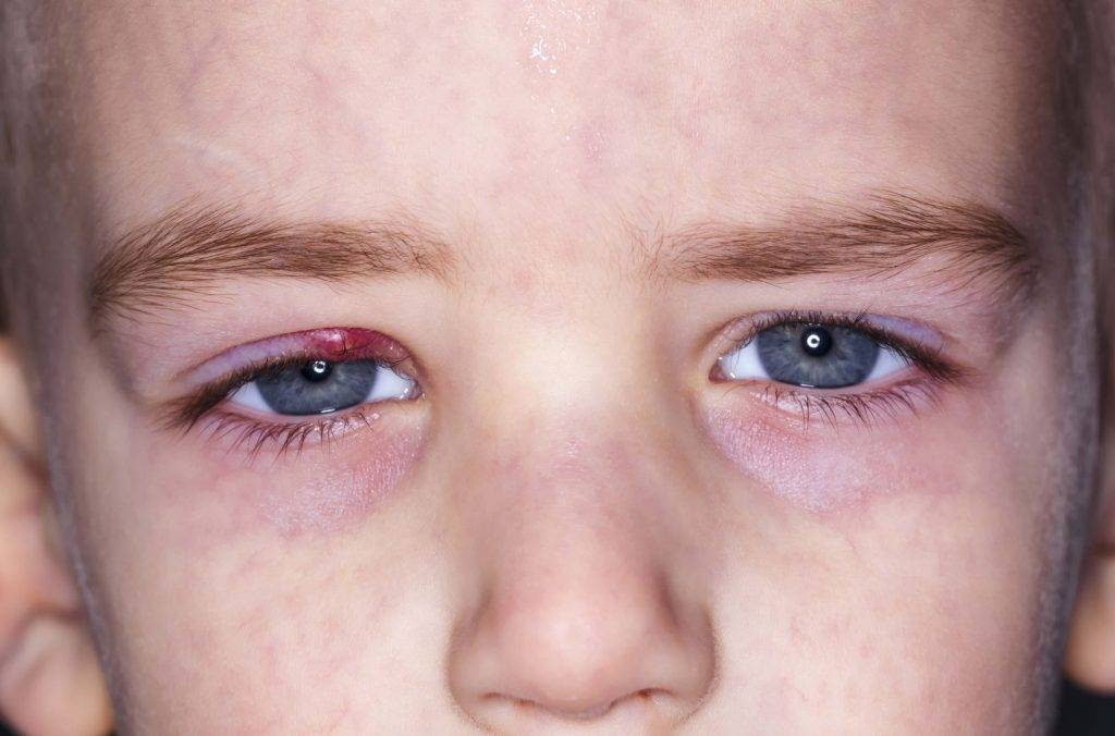 10 советов родителям при аллергическом конъюнктивите у ребёнка
