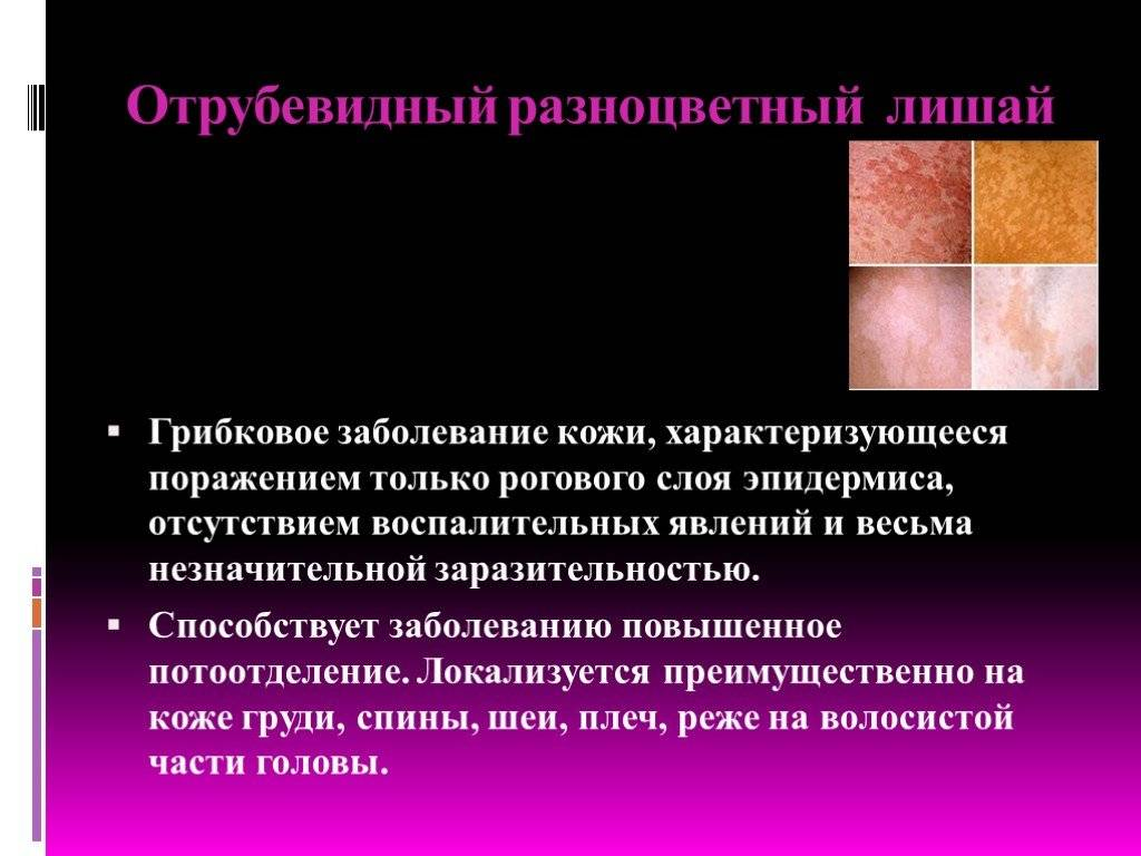 Заболевания кожи у детей: описание инфекционных и неинфекционных патологий с фото - мытищинская городская детская поликлиника №4
