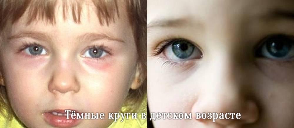 Синяки и круги под глазами у новорожденного ребенка до года