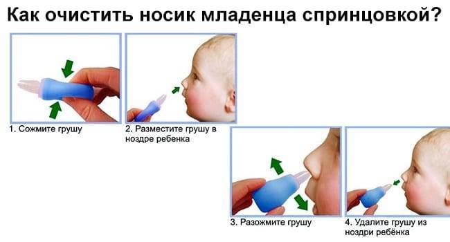 Как правильно очистить носик новорожденного при насморке