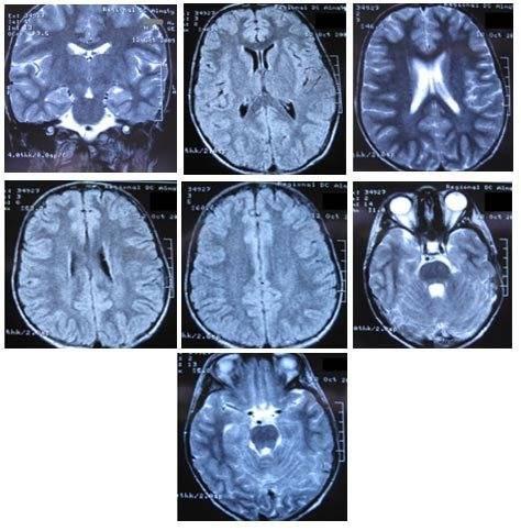 Мрт головного мозга: что показывает, когда назначается