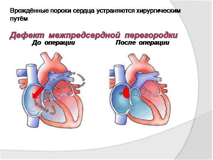 Диагностика и лечение пороков сердца у детей (сергиев посад)