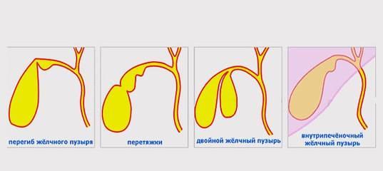 Загиб желчного пузыря у ребенка - симптомы и лечение