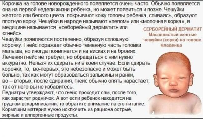 Корочка на голове у младенца
